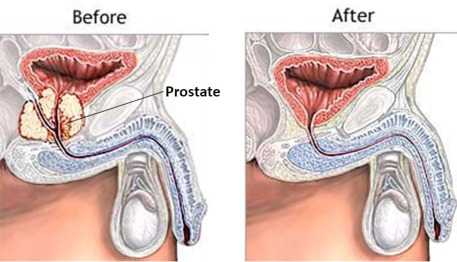 radical prostatectomy for chronic prostatitis